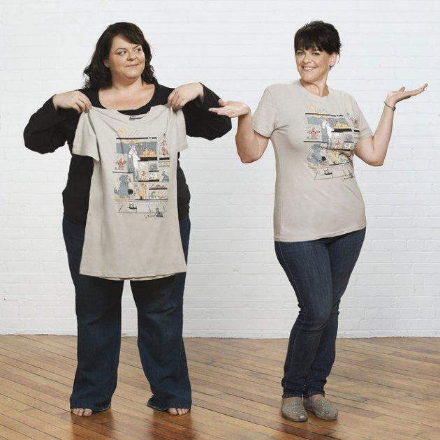 Beth obesidad morbida