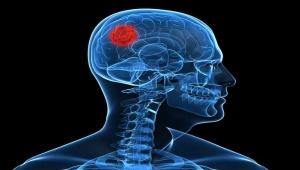 tumor-cerebral