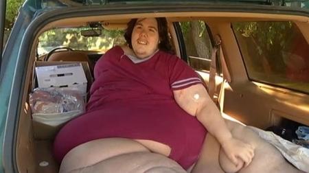 obeso morbido