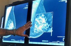 FILE - In this Tuesday July 31 2012 file photo a radiologist compares an image from earlier 2-D technology mammogram to the new 3-D Digital Breast Tomosynthesis mammography in Wichita Falls Texas The technology can detect much smaller cancers earlier Chances of dying from DCIS ductal carcinoma in situ a very early form of breast cancer are small but the disease is riskier for young women and blacks - disparities seen previously in more advanced cancer according to a large study published Thursday Aug 20 2015 in JAMA Oncology Torin Halsey Times Record News via AP mamografia